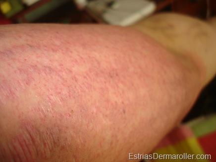 Foi utilizado um dermaroller de 1.5,mm. V-se o brao esquerdo inteiramente avermelhado, assim como as estrias. Foto tirada logo aps o tratamento.
