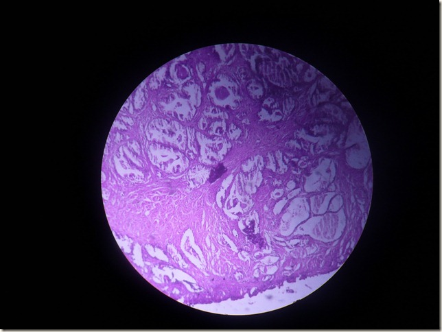 prostatic carcinoma histopathology