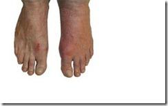 Penyakit Gout... awas !! peminat kacang goreng, roti canai, jeruk...