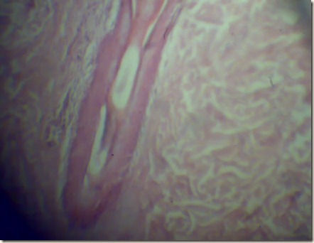 Hair folicle magnified under microscope