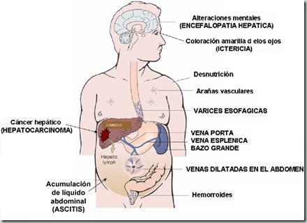 que puedo hacer para el dolor de gota el vinagre sube el acido urico tomate de arbol aumenta el acido urico