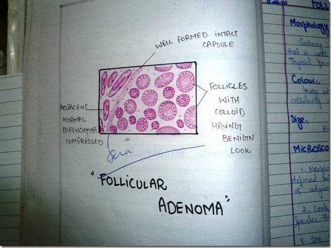 follicular adenoma of thyroid -diagram histopathology