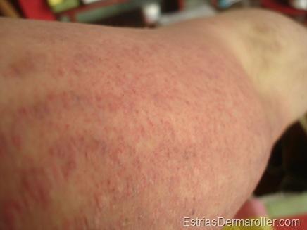 Foto tirada logo depois da rolagem. Brao Esquerdo. Estrias Profundas e Finas, brancas antes do tratamento e agora vermelhas devido ao roller.