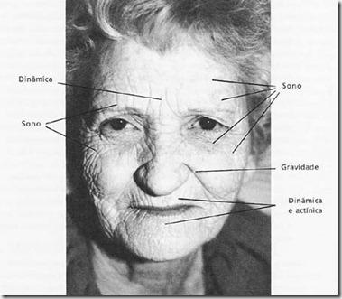 acupuntura estética curitiba rugas 2