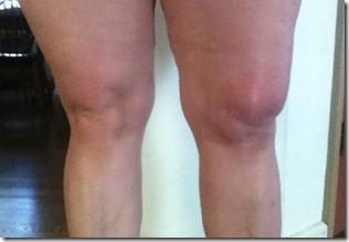 knee 6-6-11