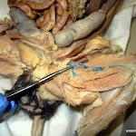 femoral_artery_vein.JPG