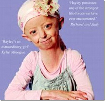 Front cover of autobiography of progeria sufferer Hayley Okines