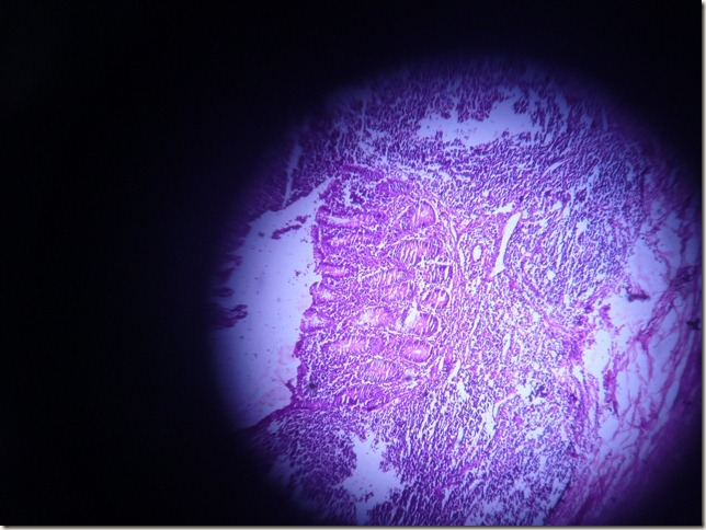 acute appendix under microscope