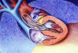 aortic-stenosis_2046663c