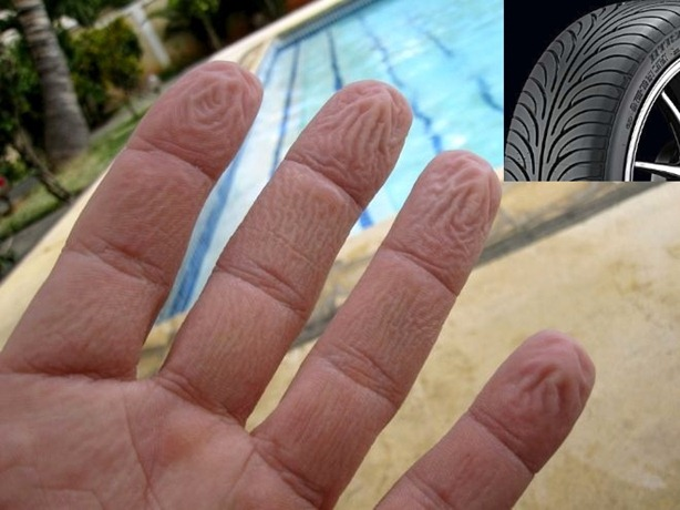 dedos 1