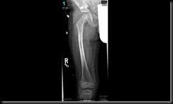 Broken femur healing 7-8-2011 (1)