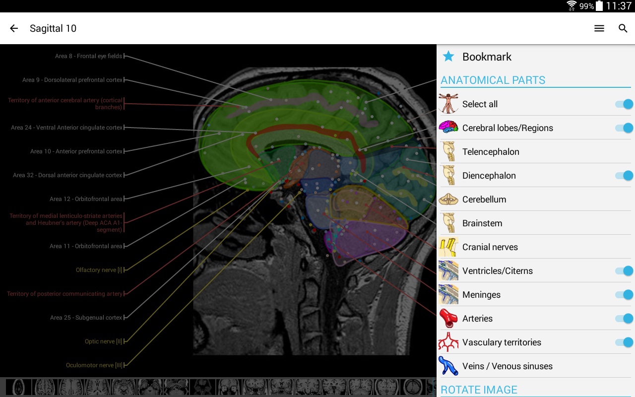 IMAIOS e-Anatomy Screenshot 11