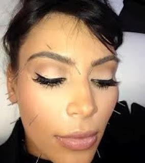 agopuntura-estetica1