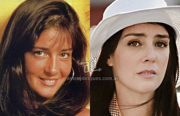 La nueva nariz operada de Paola Krum