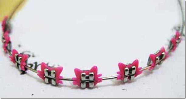 fake-braces-asia-trend-18