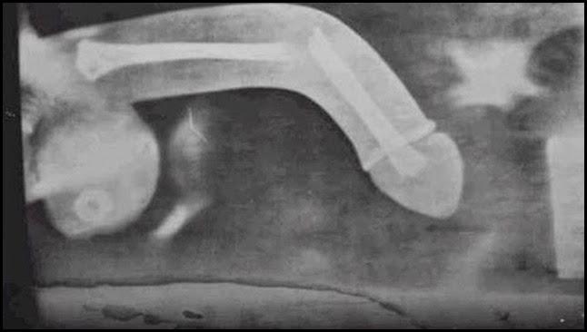 Fractura de pene