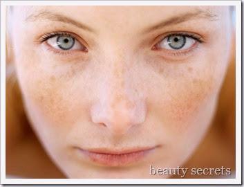 Φυσικές-λύσεις-για-πανάδες-και-κηλίδες-www.beauty-secrets.gr_