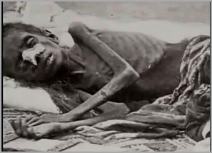 Criana Quase morta de Fome