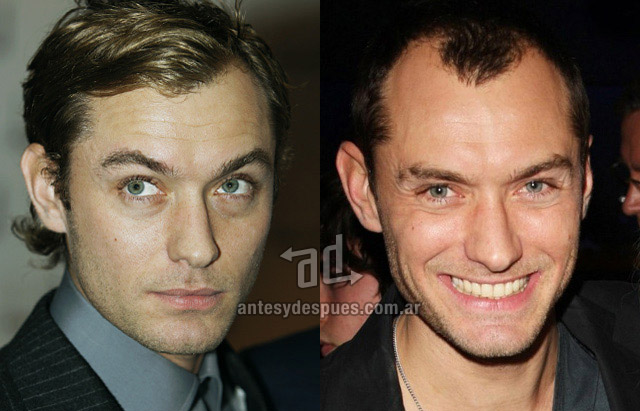Hair Loss Before &amp; After of  Jude Law