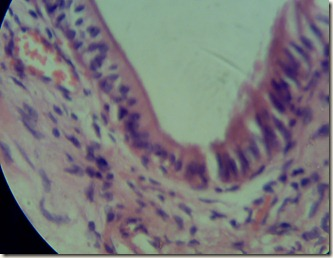 Simple columnar epithelium magnified under microscope