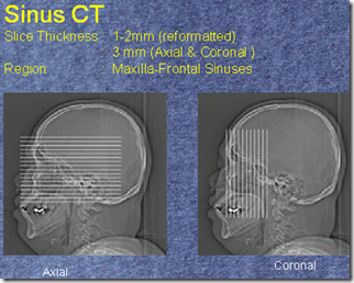 CT SINUS