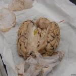 brain_pineal.JPG