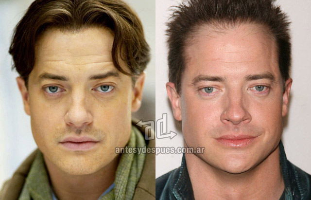 Hair Loss Before &amp; After of  Brendan Fraser