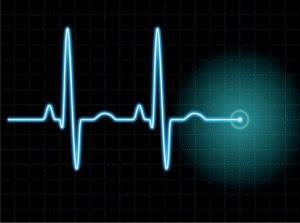 EKG.jpeg