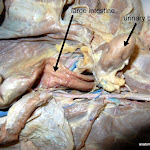 large_intestine_L.JPG