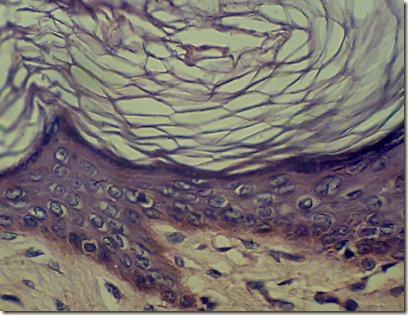 squamous keratininzed epithelium magnified under microscope
