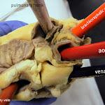 heart_vessels_external_closer_labeled.JPG