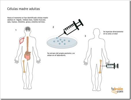 Tratamiento con Células Madre Adultas para recuperar lesiones deportivas.