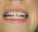 Patient A after whitening