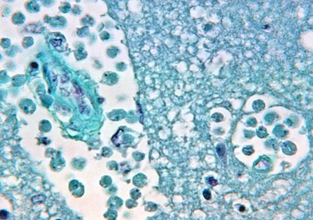 Brain tissue after being attacked by Naegleria fowleri, also called 'the brain-eating amoeba'. When the amoeba infects the brain or spinal cord, it can cause meningitis. The amoeba is moving north as the climate warms. Photo: George R. Healy / CDC