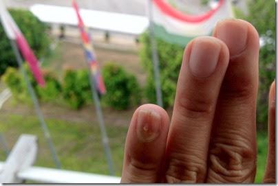 Painfulness X Adventurous: Nail-less