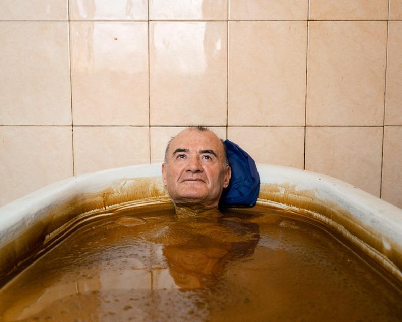 naftalan-crude-oil-baths-4
