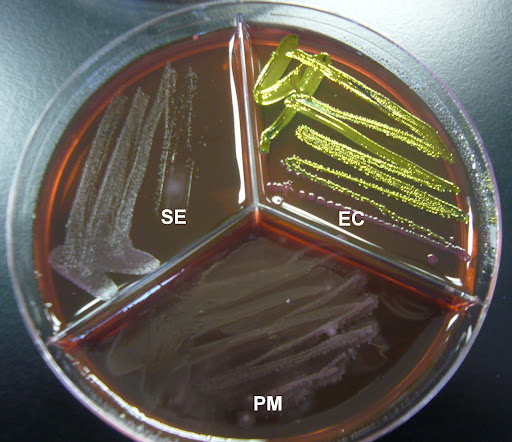 EMB Agar Selective or Differential http://picasaweb.google.com/lh/photo/g9xU87_kMUSLE2ofOaolRg