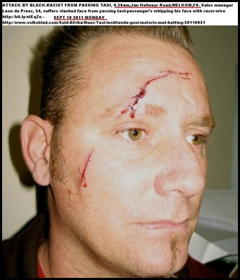 DU PREEZ LEON Welkom was whipped from taxi with razor-covered chain Sept192011