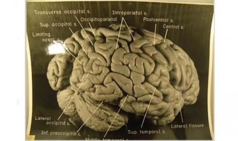 gambar-otak-sang-jenius-albert-einstein