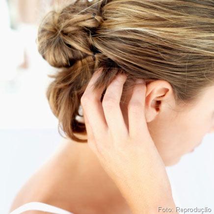 Problemas Simples também causam Feridas no couro cabeludo.