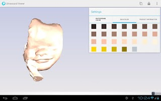 Screenshot of Ultrasound Viewer