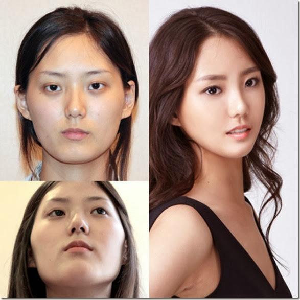 korean-plastic-surgery-18