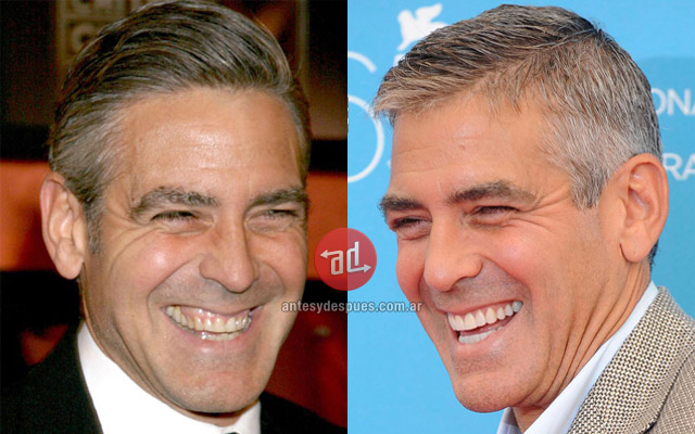 New teeth of George Clooney