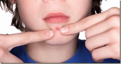 tratamientas para prevenir el acne