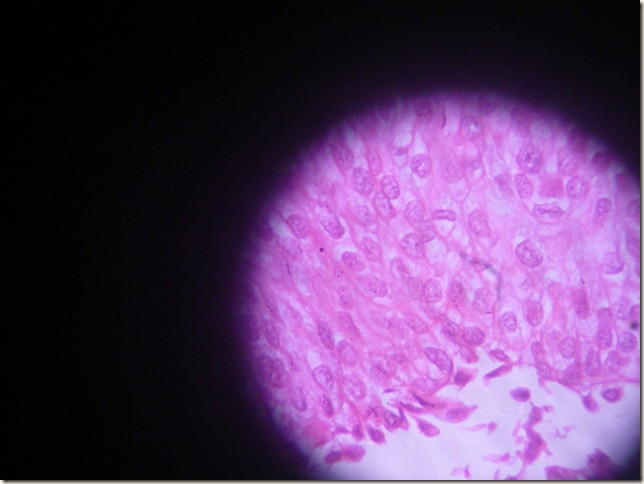 transitional cell CA histopathology