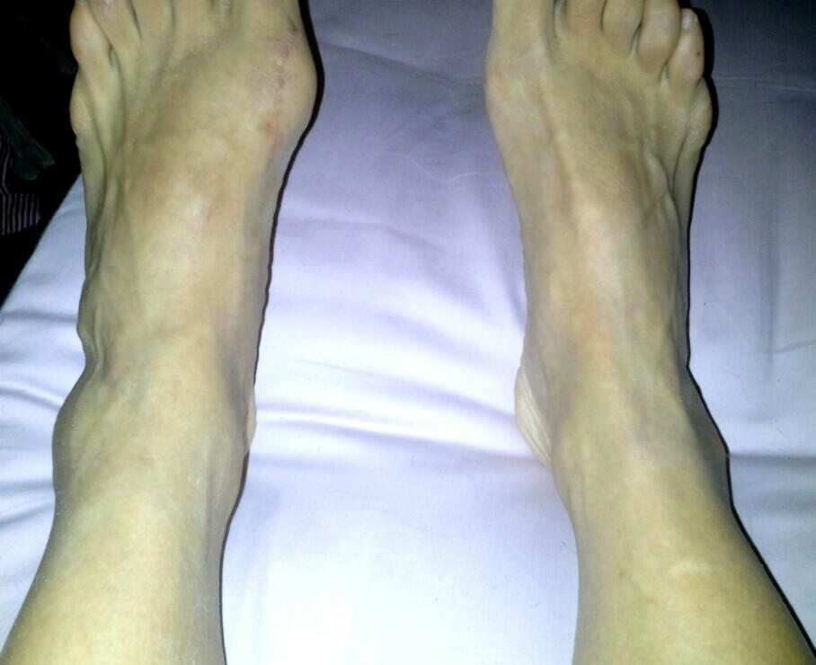 knöl på fotens utsida