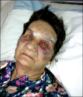 BOTHA Salome Blackheath threated to be torched with husband Willem 77 March 8 2012