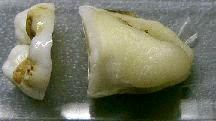 歯を分割する