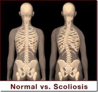 Scoliosis_Tulang_Belakang_Bengkok