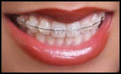 braces-ceramic